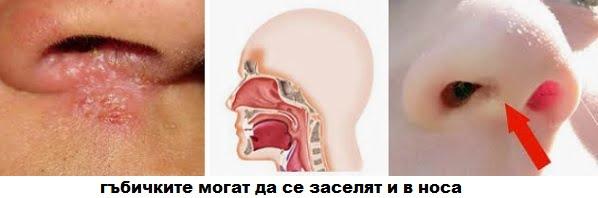 Микомакс против гъбички, лекарство