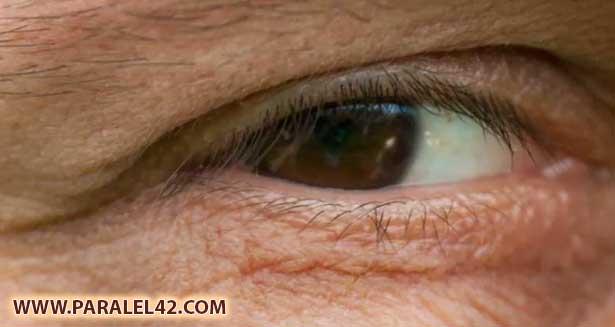 Горният клепач на лявото око, потрепване