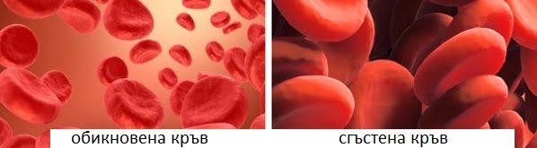 висок хемоглобин, лечение