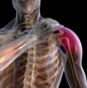 симптоми на плексит на плешката, болки