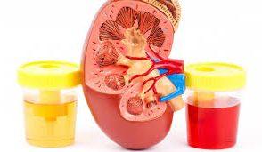 Кръв в урината, причини