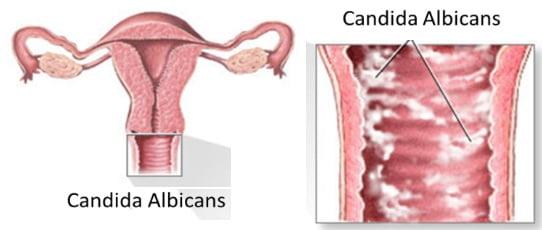 Гиназол вагинални глобули