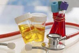 Кръв в урината, изследвания, диагностика
