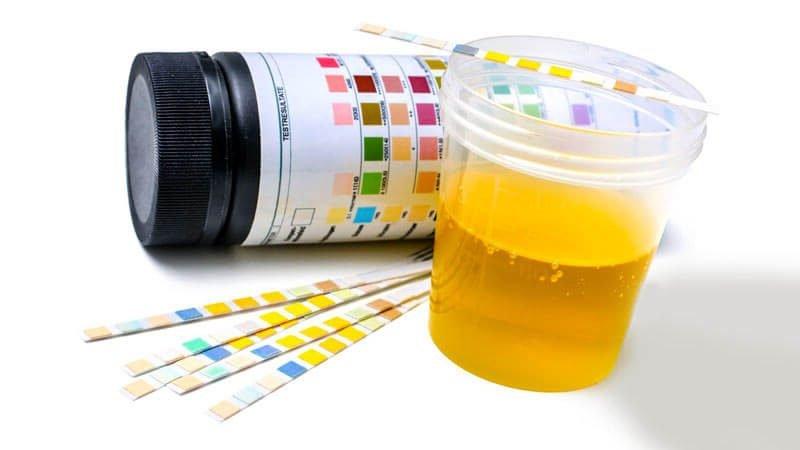 левкоцити в урината стойности