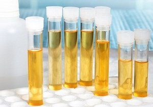 проба, изследвания за левкоцити в урината