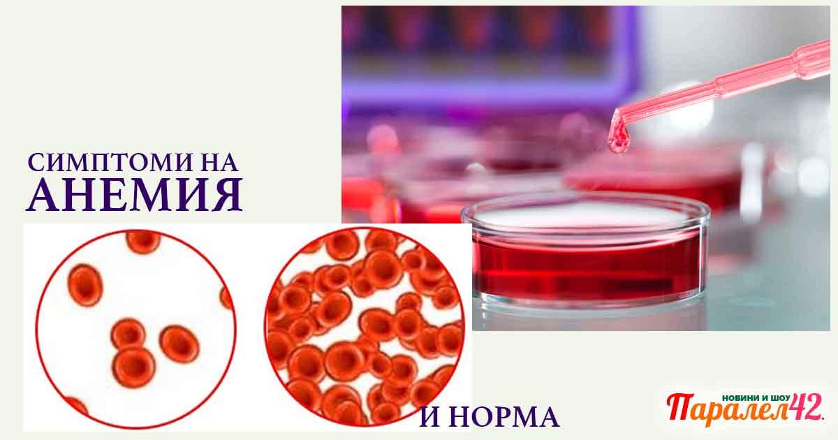 Симптоми на анемия, желязодефицитна анемия