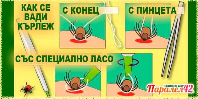 премахване на кърлеж
